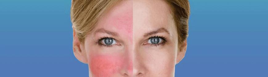 העלמת אדמומיות בעור הפנים